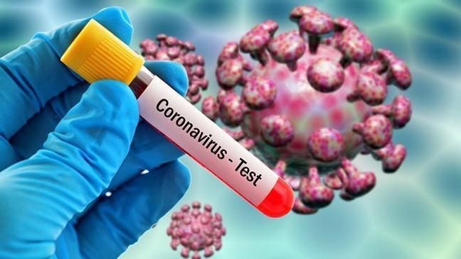 Azərbaycanda koronavirusla bağlı bugünkü test sayı açıqlandı – STATİSTİKA