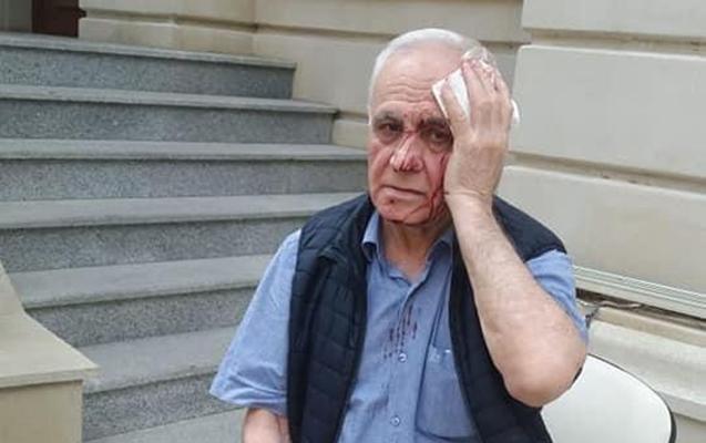 Rəhim Qazıyevin döyülməsilə bağlı cinayət işi başlanıldı
