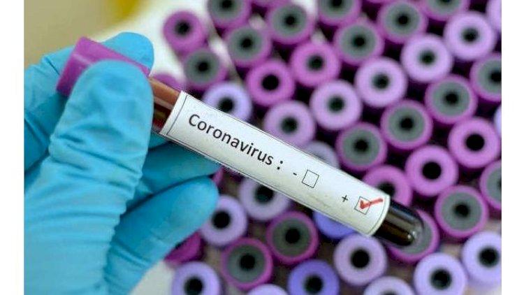 Akisiyalar koronavirusa yoluxma sayına niyə təsir etmədi?