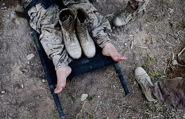 Ermənistan ordusu itki verdi