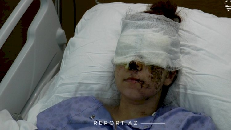 Ermənilərin Gəncə terroru nəticəsində iki uşaq anası görmə qabiliyyətini itirdi