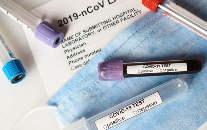 Koronavirusla bağlıSON STATİSTİKA